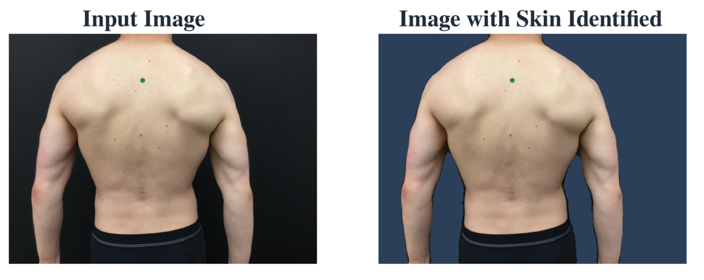 A patient photo before and after the skin has been isolated. The background is ignored during later processing.