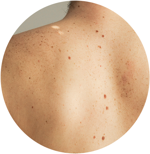 Picture of a light-skinned person's back that has many moles.